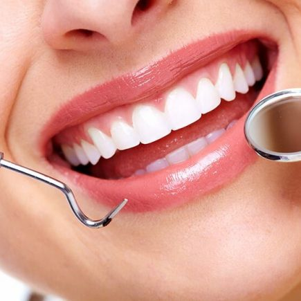 How You Can Benefit from Straighter Teeth
